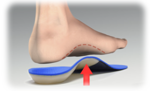 Sole Supports Orthotics - East Nashville - East End Chiro